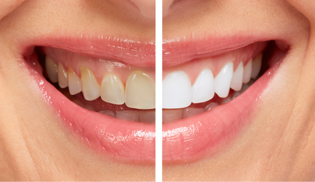smile comparison - yellow vs. white teeth